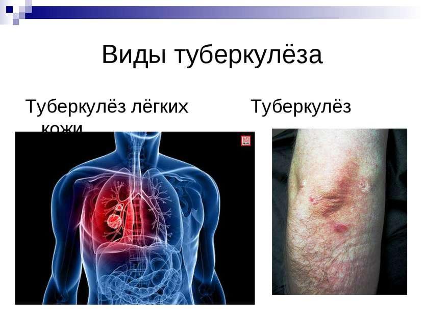 Виды туберкулёза Туберкулёз лёгких Туберкулёз кожи