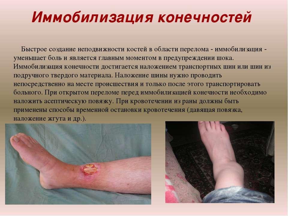 Иммобилизация конечностей Быстрое создание неподвижности костей в области пер...