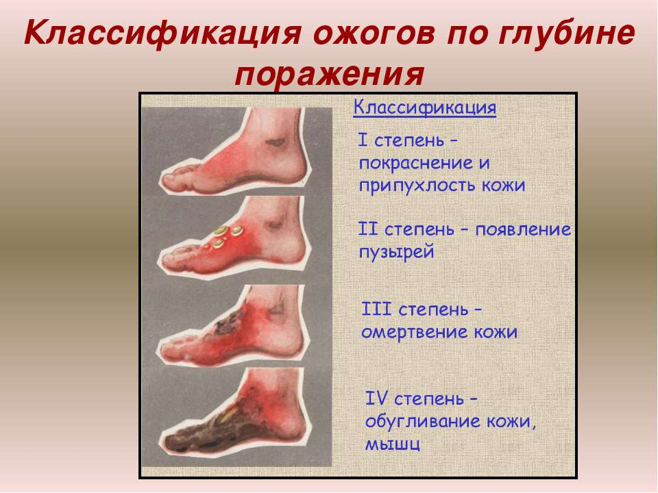 Аппараты для лечения ложных суставов