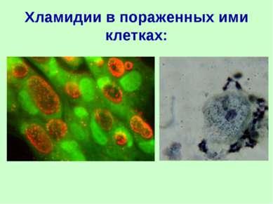 Хламидии в пораженных ими клетках: