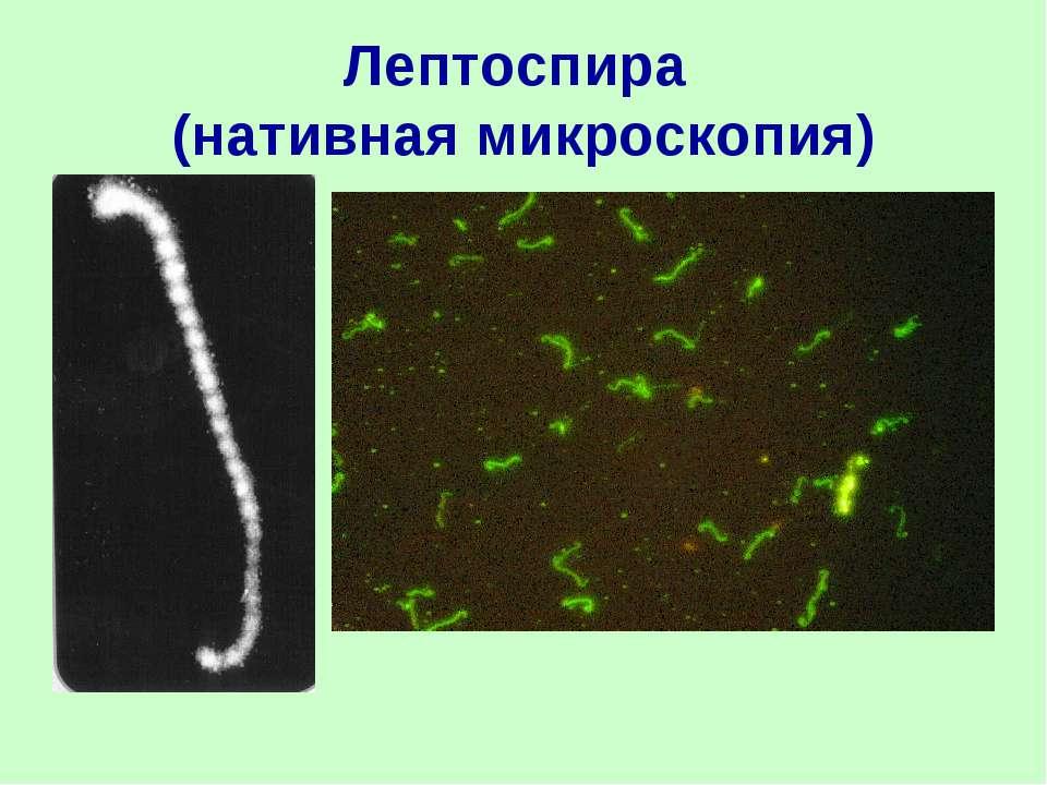 Лептоспира (нативная микроскопия)