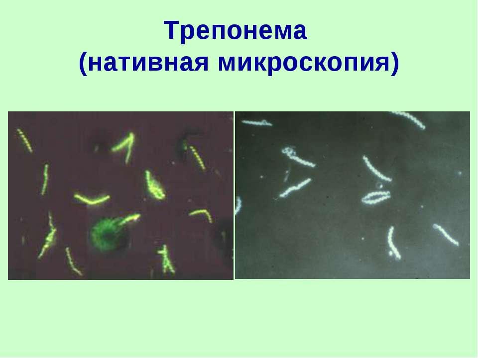 Трепонема (нативная микроскопия)