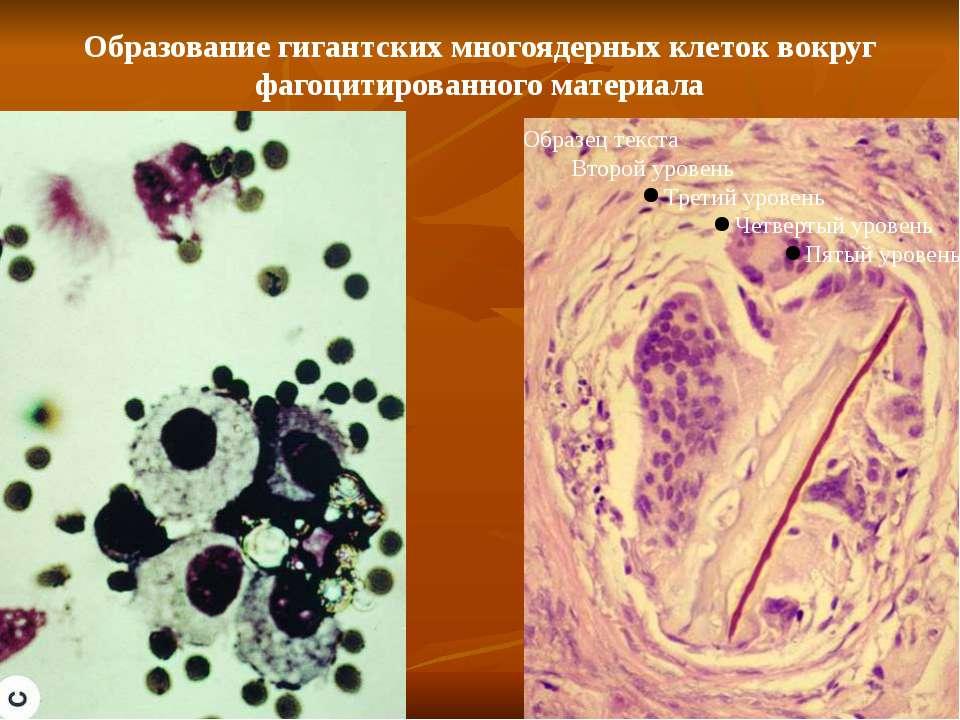 Образование гигантских многоядерных клеток вокруг фагоцитированного материала