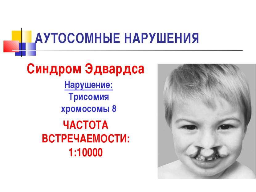 АУТОСОМНЫЕ НАРУШЕНИЯ Синдром Эдвардса Нарушение: Трисомия хромосомы 8 ЧАСТОТА...