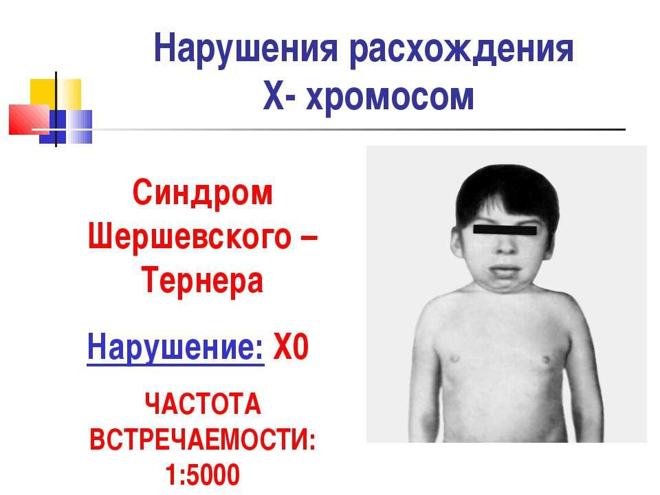 Нарушения расхождения Х- хромосом Синдром Шершевского –Тернера Нарушение: Х0 ...