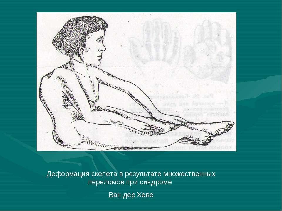 Деформация скелета в результате множественных переломов при синдроме Ван дер ...