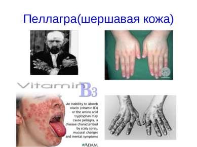 Пеллагра(шершавая кожа)