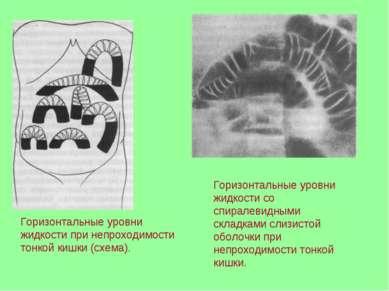 Горизонтальные уровни жидкости при непроходимости тонкой кишки (схема). Гориз...