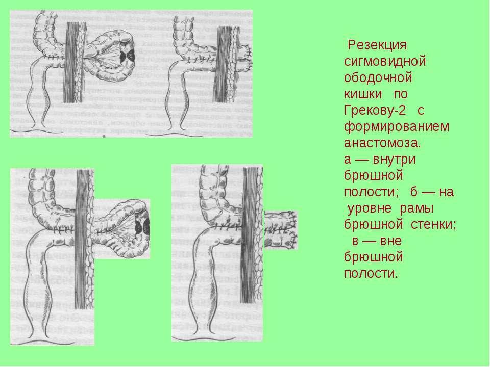 Резекция сигмовидной ободочной кишки по Грекову-2 с формированием анастомоза....