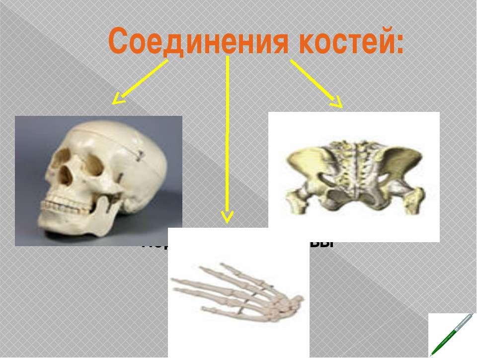Соединения костей: Неподвижные Подвижные - суставы Малоподвижные