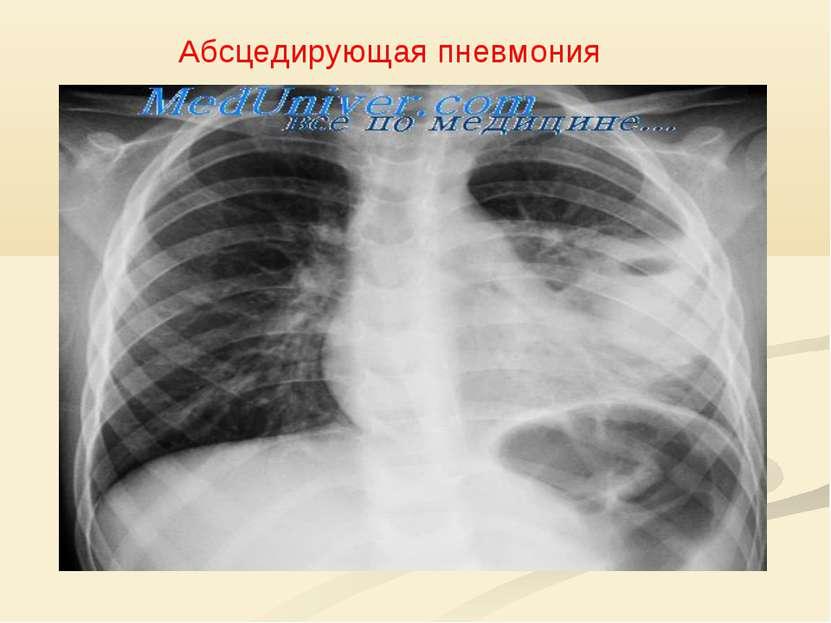 Абсцедирующая пневмония