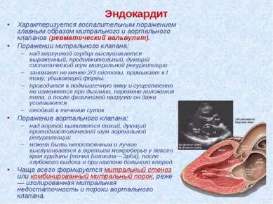 Эндокардит Характеризуется воспалительным поражением главным образом митральн...