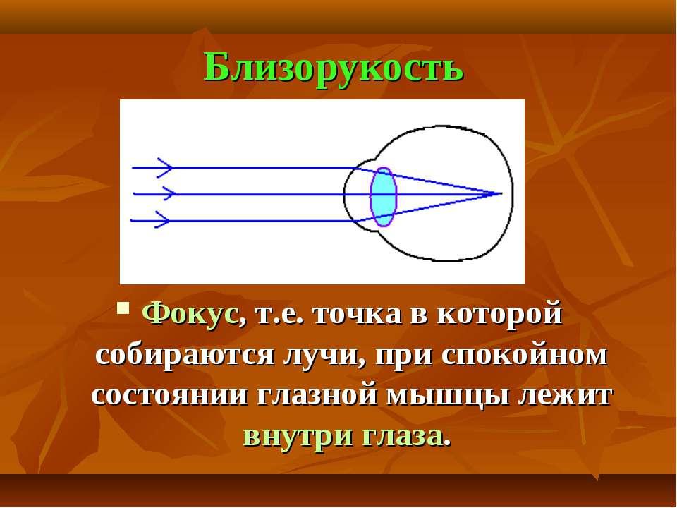 Близорукость Фокус, т.е. точка в которой собираются лучи, при спокойном состо...