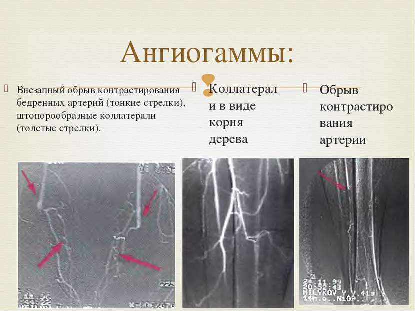 Внезапный обрыв контрастирования бедренных артерий (тонкие стрелки), штопороо...