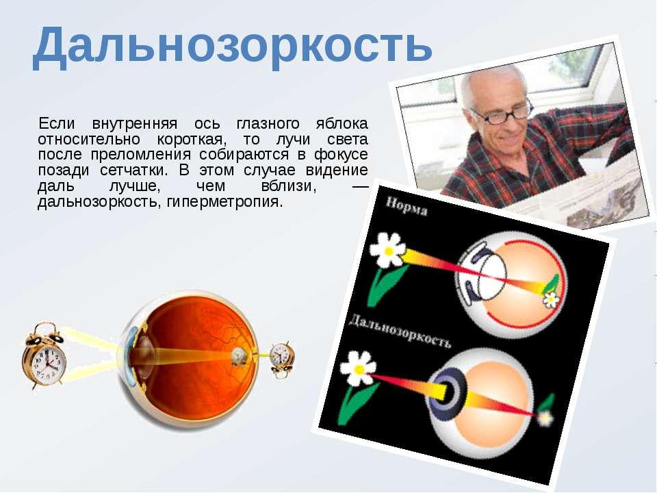 Дальнозоркость Если внутренняя ось глазного яблока относительно короткая, то ...