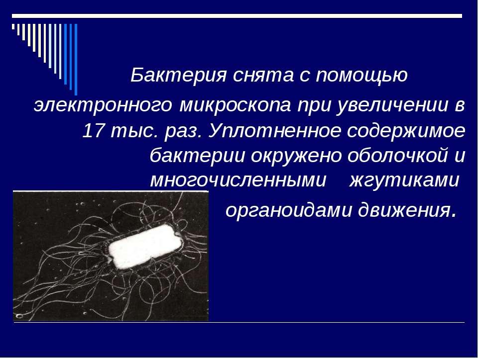 Бактерия снята с помощью электронного микроскопа при увеличении в 17 тыс. раз...