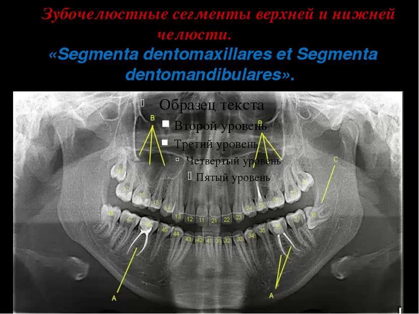 Зубочелюстные сегменты верхней и нижней челюсти. «Segmenta dentomaxillares et...