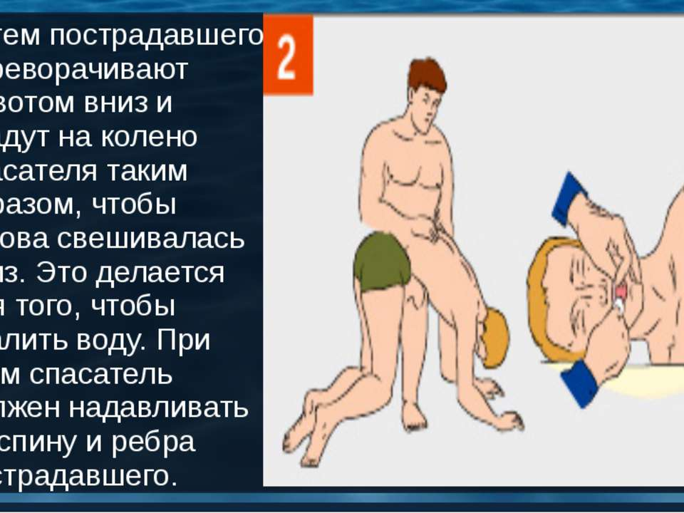 Затем пострадавшего переворачивают животом вниз и кладут на колено спасателя ...