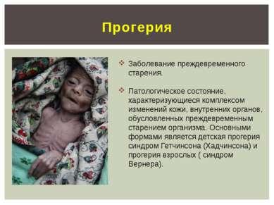 Прогерия Заболевание преждевременного старения. Патологическое состояние, хар...