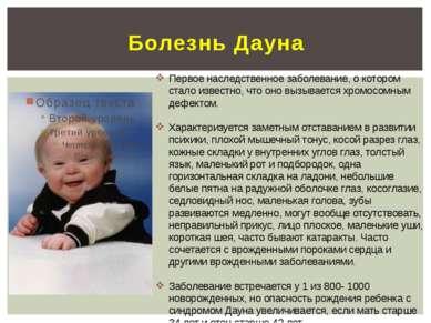 Болезнь Дауна Первое наследственное заболевание, о котором стало известно, чт...