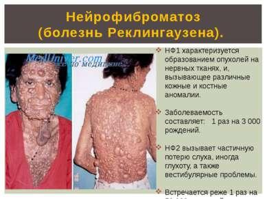 Нейрофиброматоз (болезнь Реклингаузена). а НФ1 характеризуется образованием о...