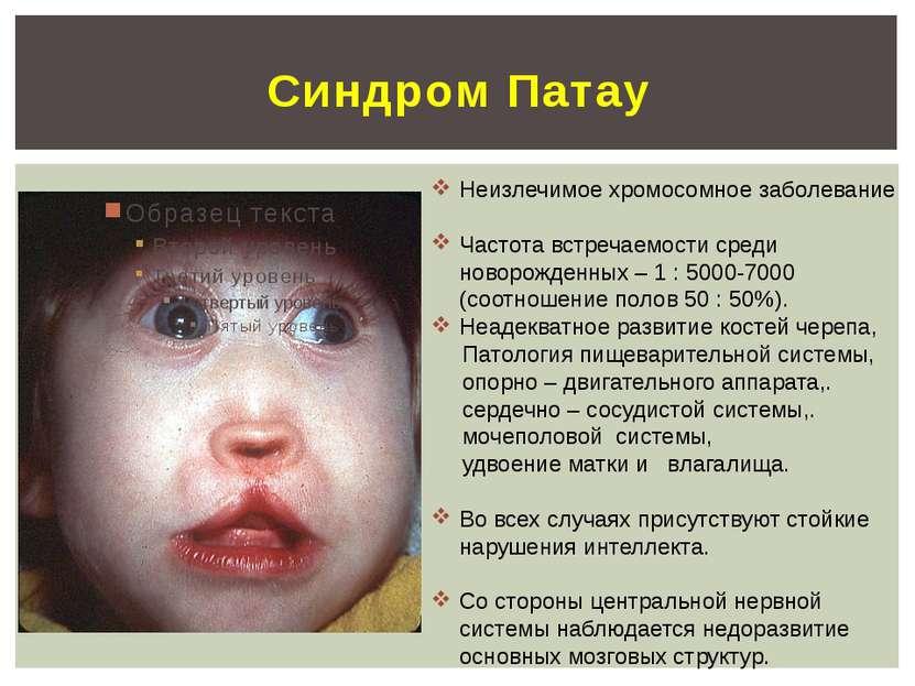 Синдром Патау Неизлечимое хромосомное заболевание Частота встречаемости среди...