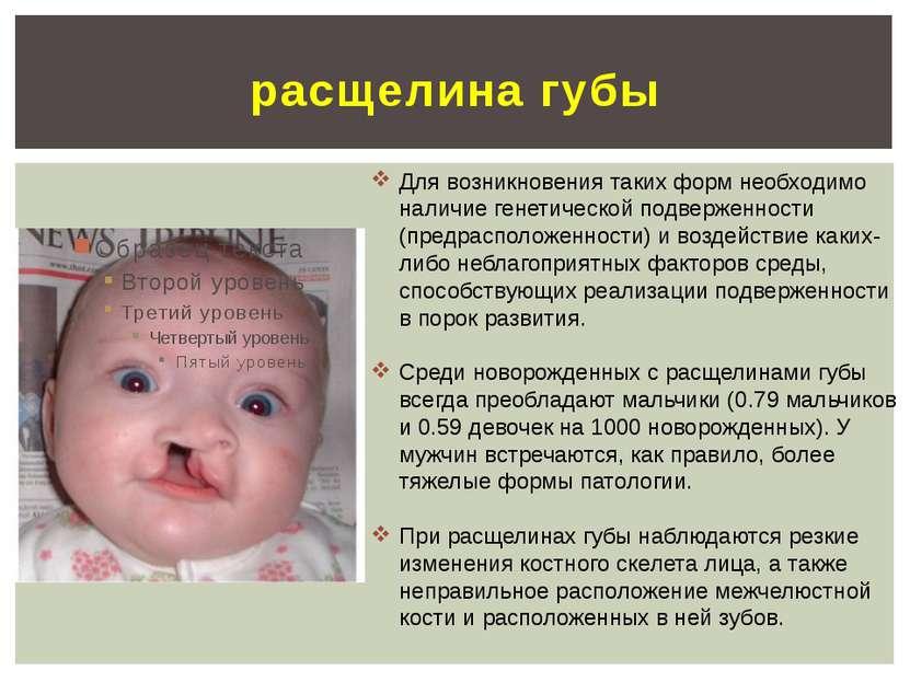 расщелина губы Для возникновения таких форм необходимо наличие генетической п...