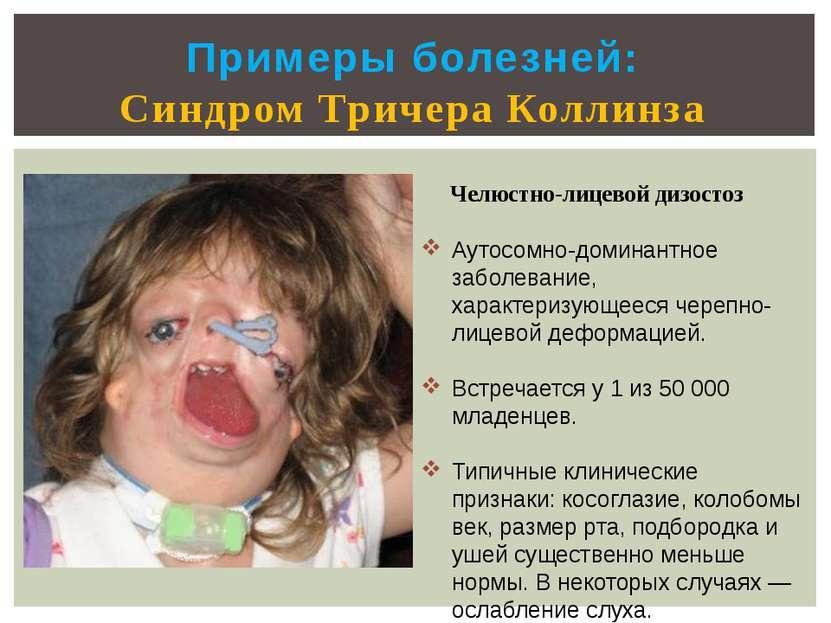 Примеры болезней: Синдром Тричера Коллинза Челюстно-лицевой дизостоз Аутосомн...