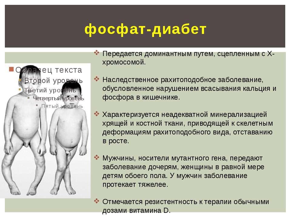 фосфат-диабет Передается доминантным путем, сцепленным с Х-хромосомой. Наслед...