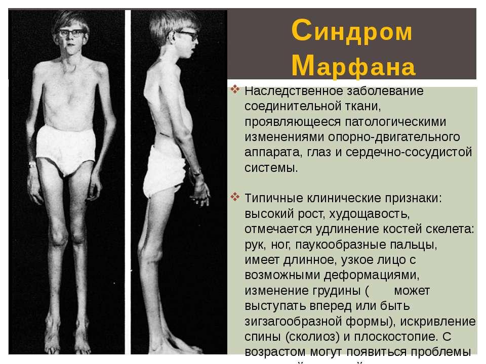 Синдром Марфана Наследственное заболевание соединительной ткани, проявляющеес...