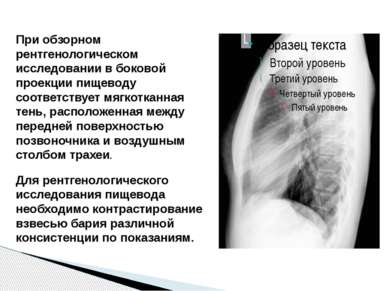 При обзорном рентгенологическом исследовании в боковой проекции пищеводу соот...