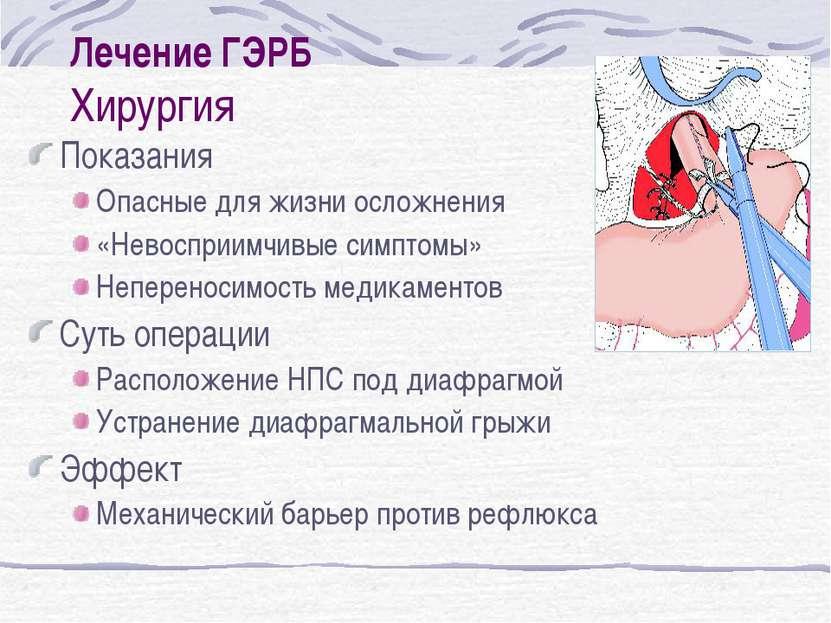 Как лечить гастроэзофагеальную рефлюксную болезнь