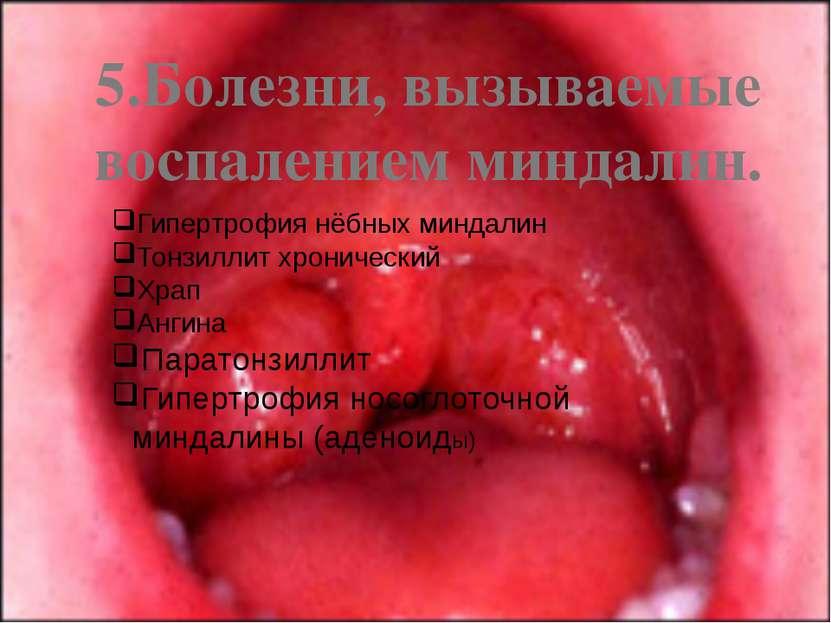 5.Болезни, вызываемые воспалением миндалин. Гипертрофия нёбных миндалин Тонзи...