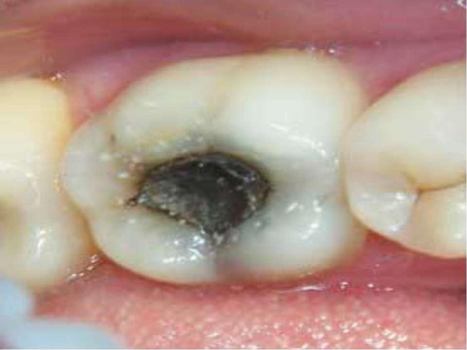 Заболевания ангинами могут быть связаны с гнойными воспалительными процессами...