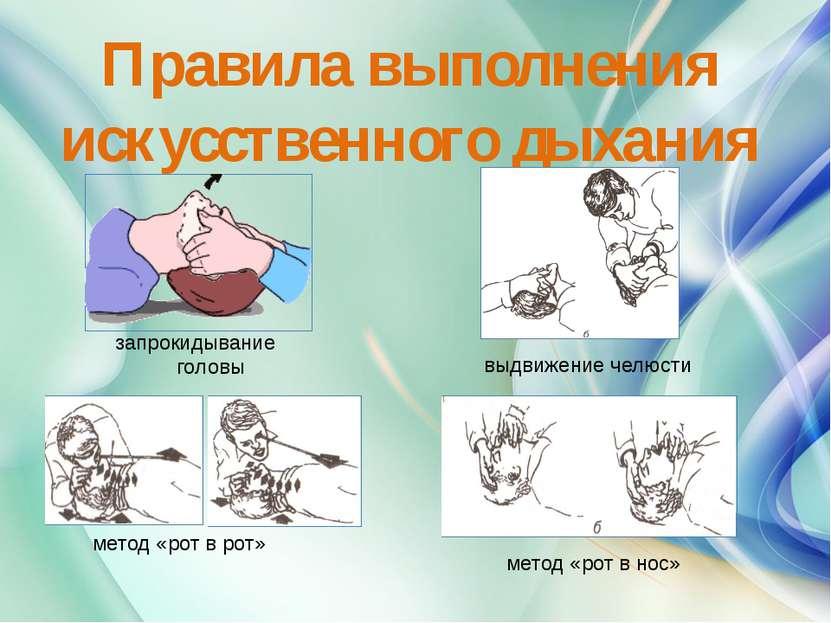 Правила выполнения искусственного дыхания запрокидывание головы выдвижение че...