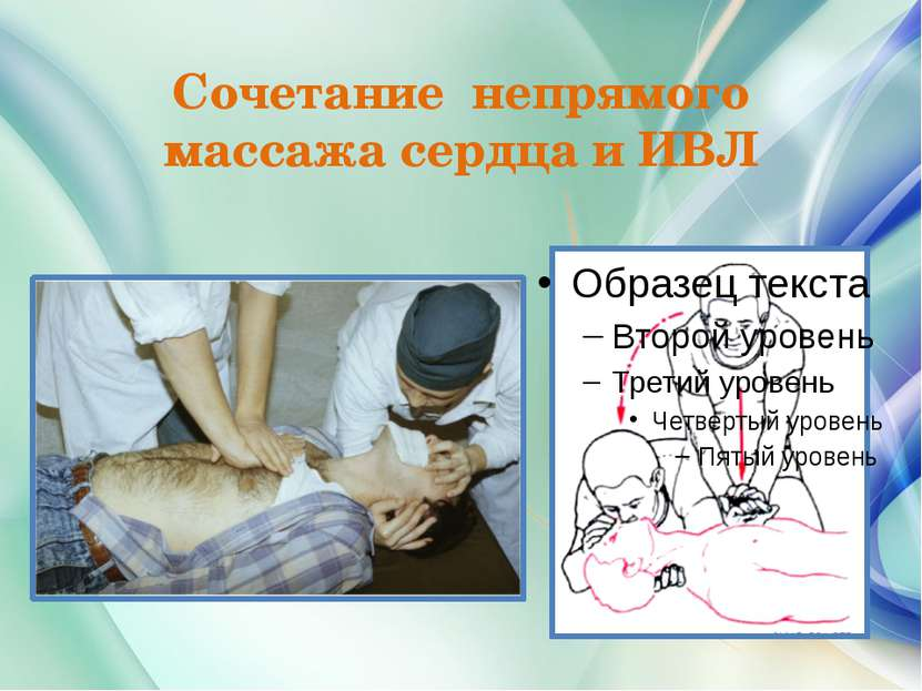 Сочетание непрямого массажа сердца и ИВЛ