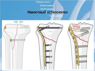 Накостный остеосинтез Костные фрагменты устанавливают в заданном положении, д...