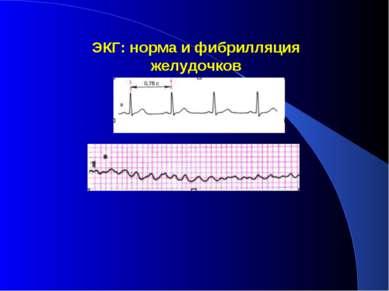ЭКГ: норма и фибрилляция желудочков