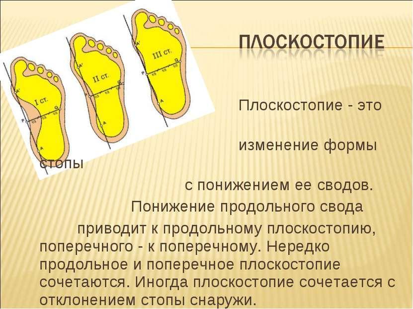 Плоскостопие - это изменение формы стопы с понижением ее сводов. Понижение пр...