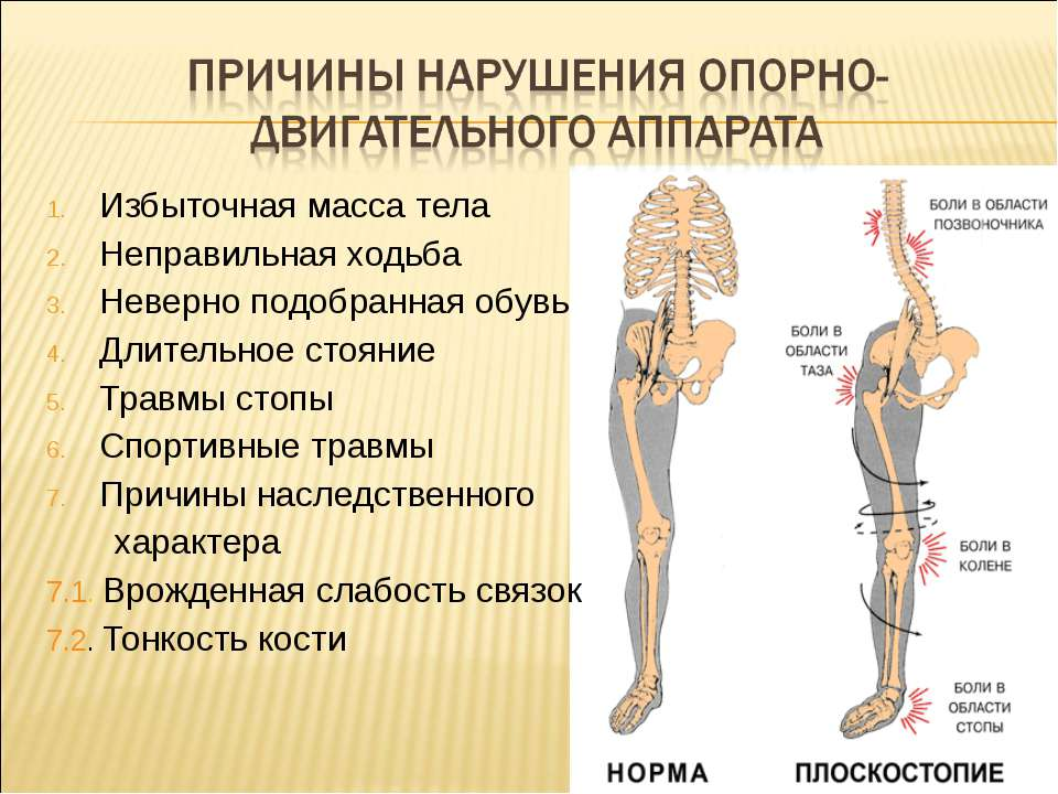 Избыточная масса тела Неправильная ходьба Неверно подобранная обувь Длительно...