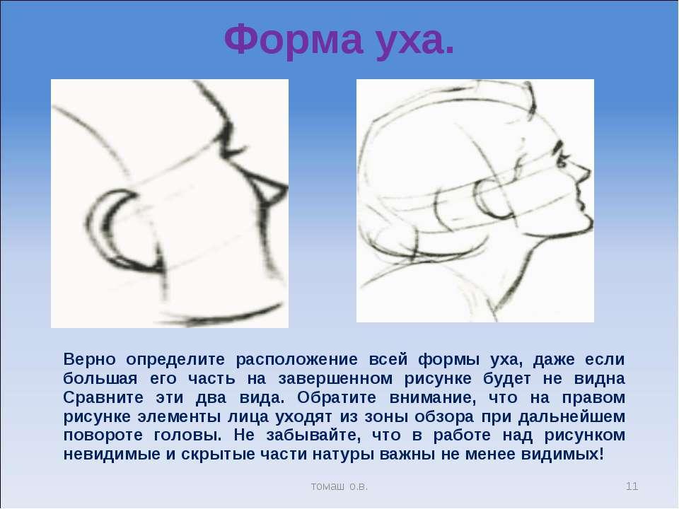 Форма уха. * томаш о.в. Верно определите расположение всей формы уха, даже ес...