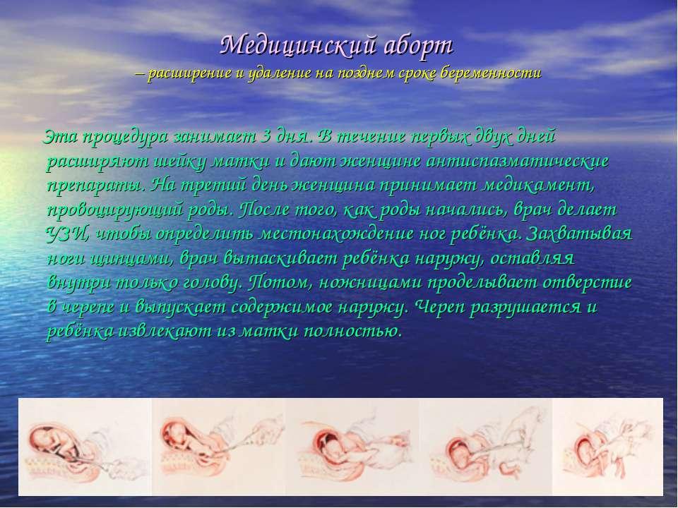 Медицинский аборт – расширение и удаление на позднем сроке беременности Эта п...