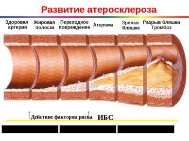 Развитие атеросклероза Здоровая артерия Жировая полоска Переходное повреждени...