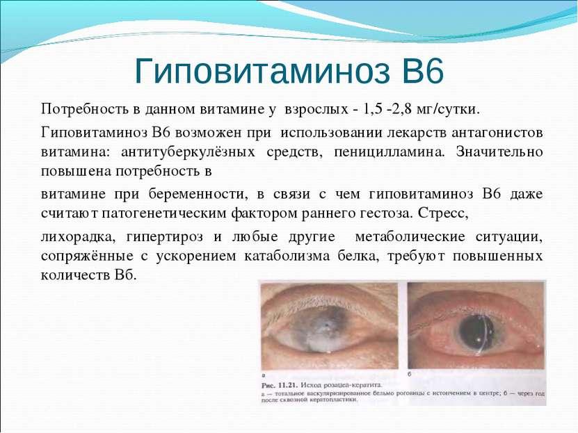 Гиповитаминоз В6 Потребность в данном витамине у взрослых - 1,5 -2,8 мг/сутки...
