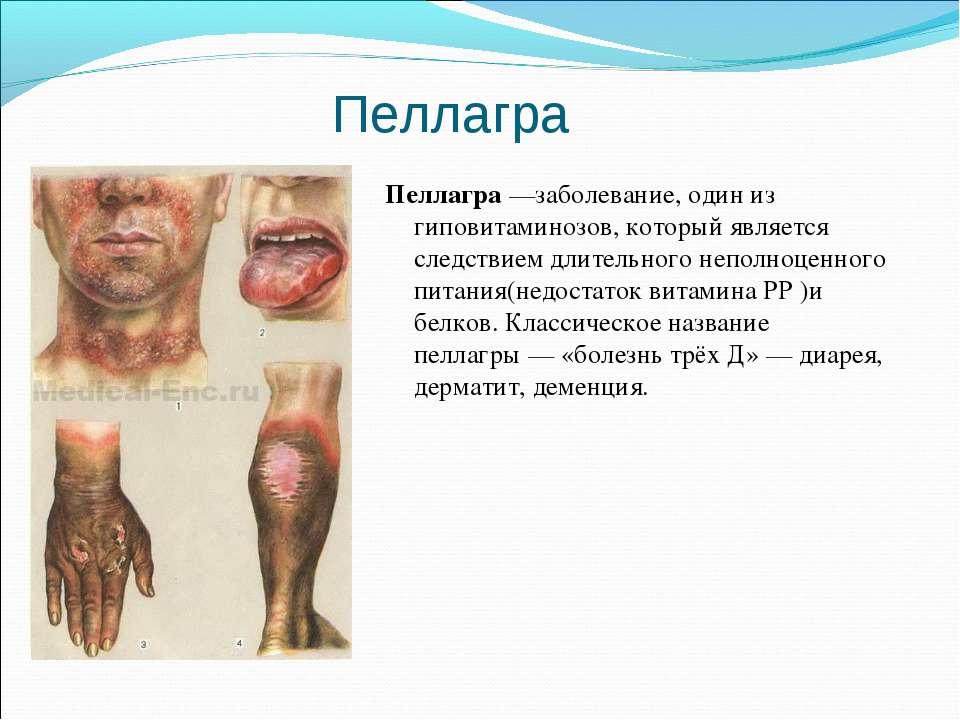 Пеллагра Пеллагра—заболевание, один из гиповитаминозов, который является сле...