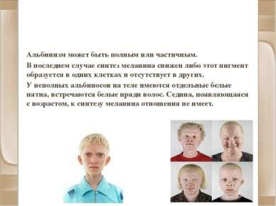 Альбинизм и другие нарушения пигментации Альбинизм может быть полным или част...