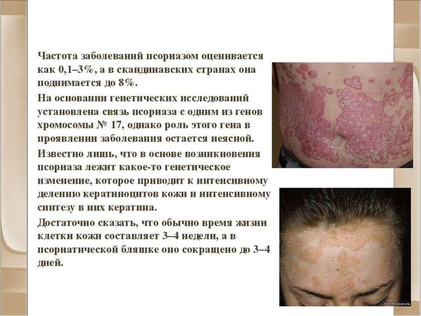 Псориаз Частота заболеваний псориазом оценивается как 0,1–3%, а в скандинавск...