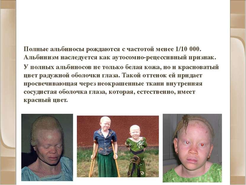 Альбинизм и другие нарушения пигментации Полные альбиносы рождаются с частото...
