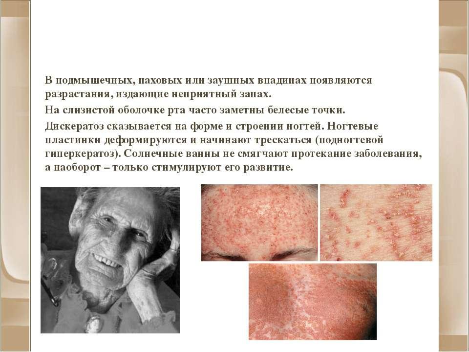 Фолликулярный дискератоз (болезнь Дарье) В подмышечных, паховых или заушных в...