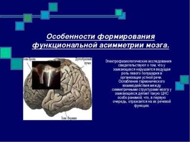 Особенности формирования функциональной асимметрии мозга. Электрофизиологичес...